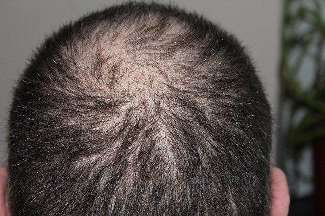 סיבות לנשירת שיער אצל מבוגרים